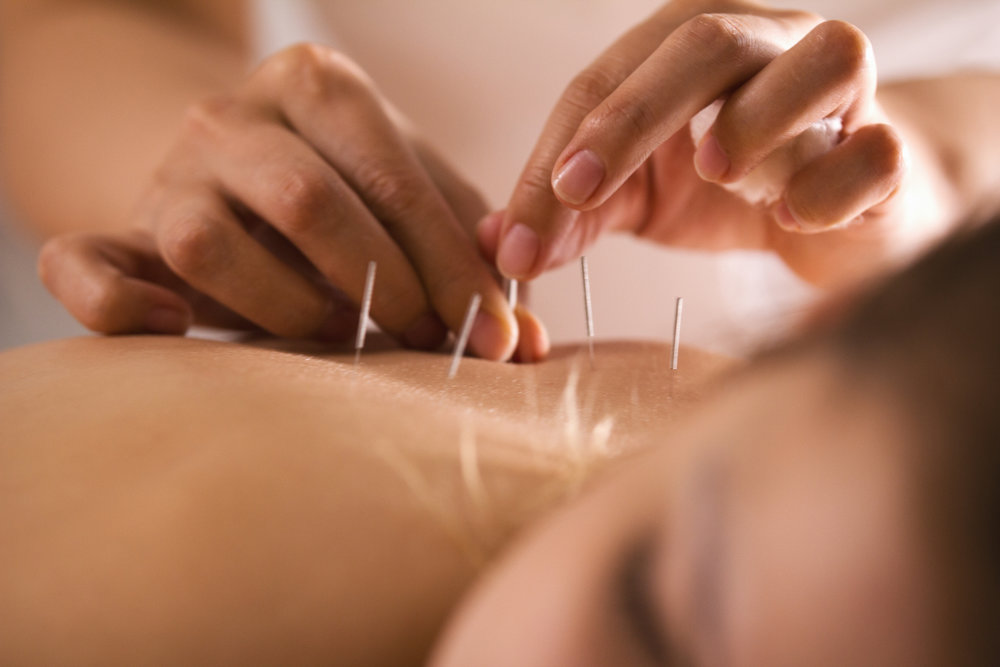 Desautel Chiropractic _Acupuncture in West Seattle.jpg