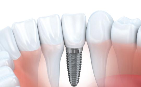 implants-3.jpg