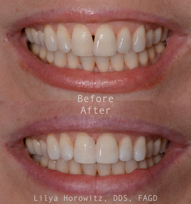 Hate how that space between your teeth always makes it look like you have food stuck in there? This is called a black triangle and it can be corrected without cutting down your teeth at all in one visit!