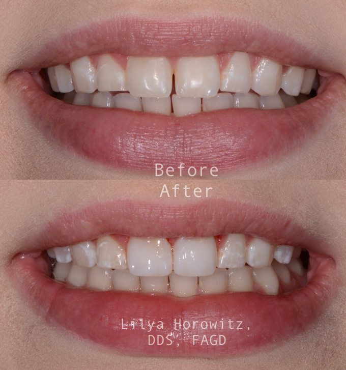 This patient had a small gap between her teeth that always bothered her. We were able to complete this with zero drilling in one visit!