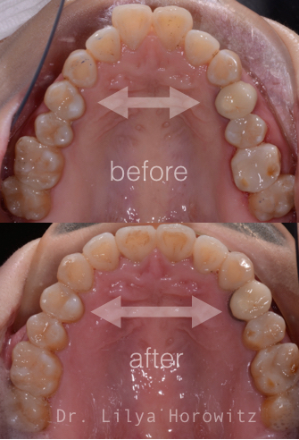 This photos illustrates how much wider your smile can be after it is corrected with Invisalign.