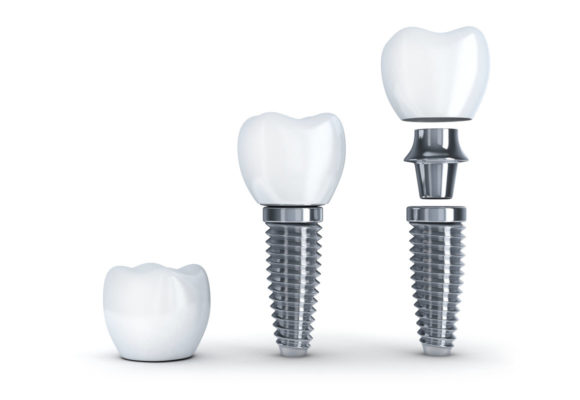 dental implant toorak crown.png
