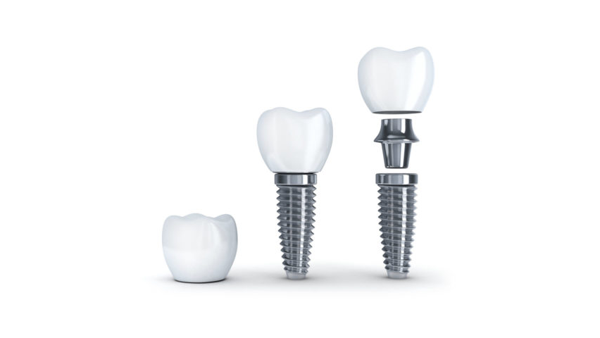 dental implant toorak.png