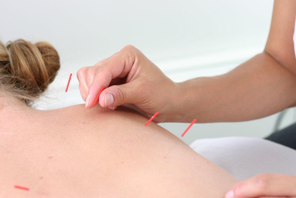 iStock-134589492 Acupuncture.jpg