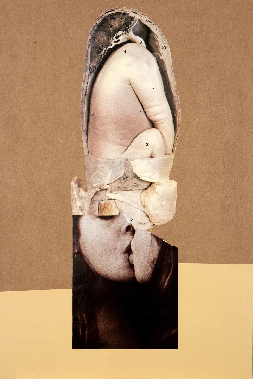 Narcissus Foetus , 2012. Collage, 42,5 x 28,6 cm.