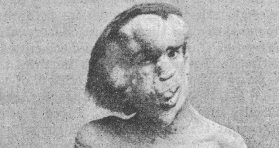 joseph-merrick-elephant-face.jpg