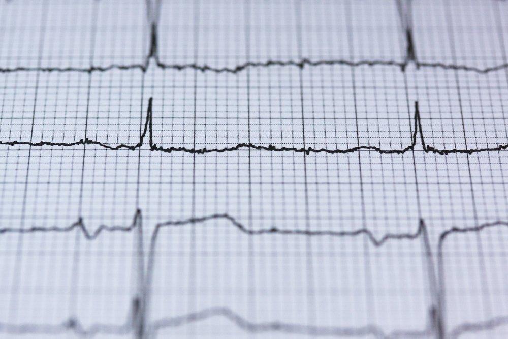 Atrial Fibrillation 心房顫動