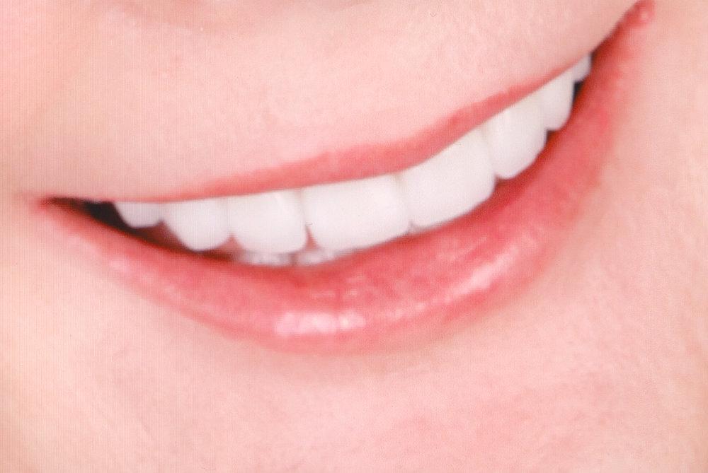 smile004b.jpg