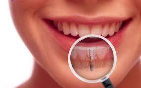 implants (1).jpg