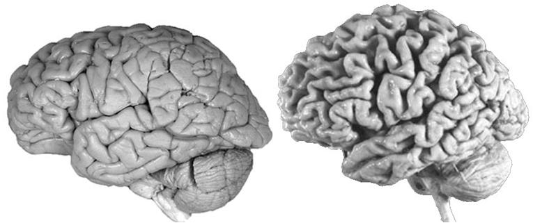 Human Brains V2.png