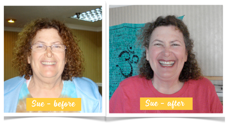 sue -- before after.jpg