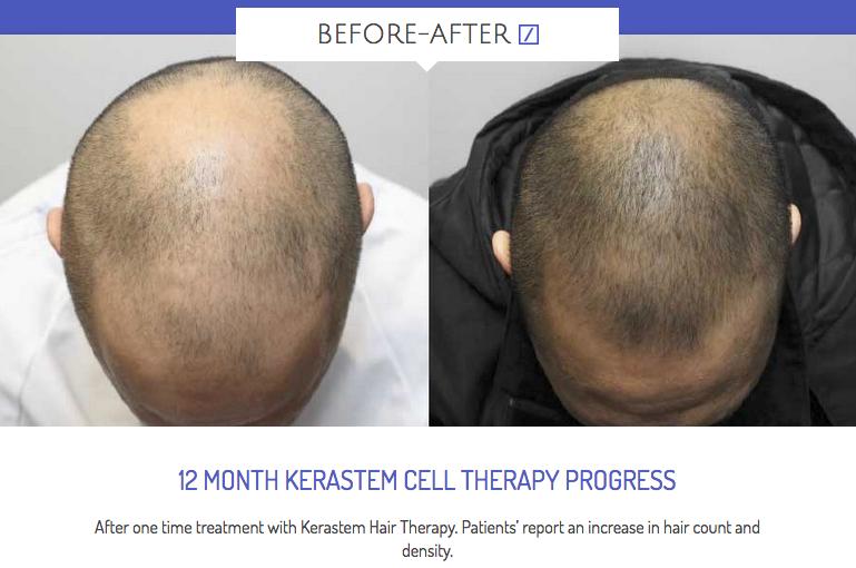 Kerastem Uk Advanced Hair Therapy
