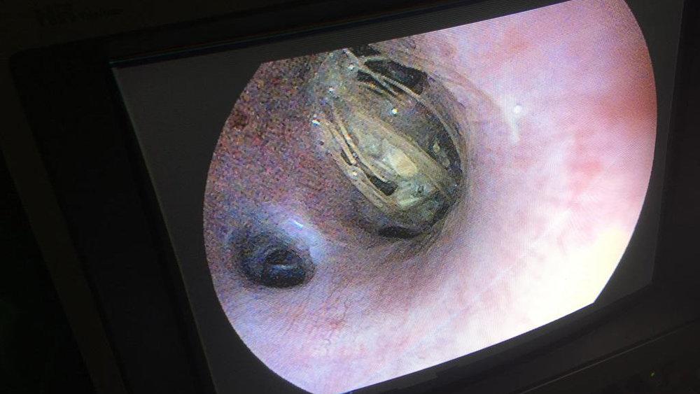 Endoskopie (Leistungen).jpg