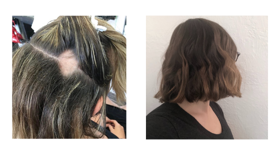 hair before and after nutrition therapy