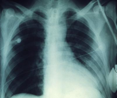 pneumonic