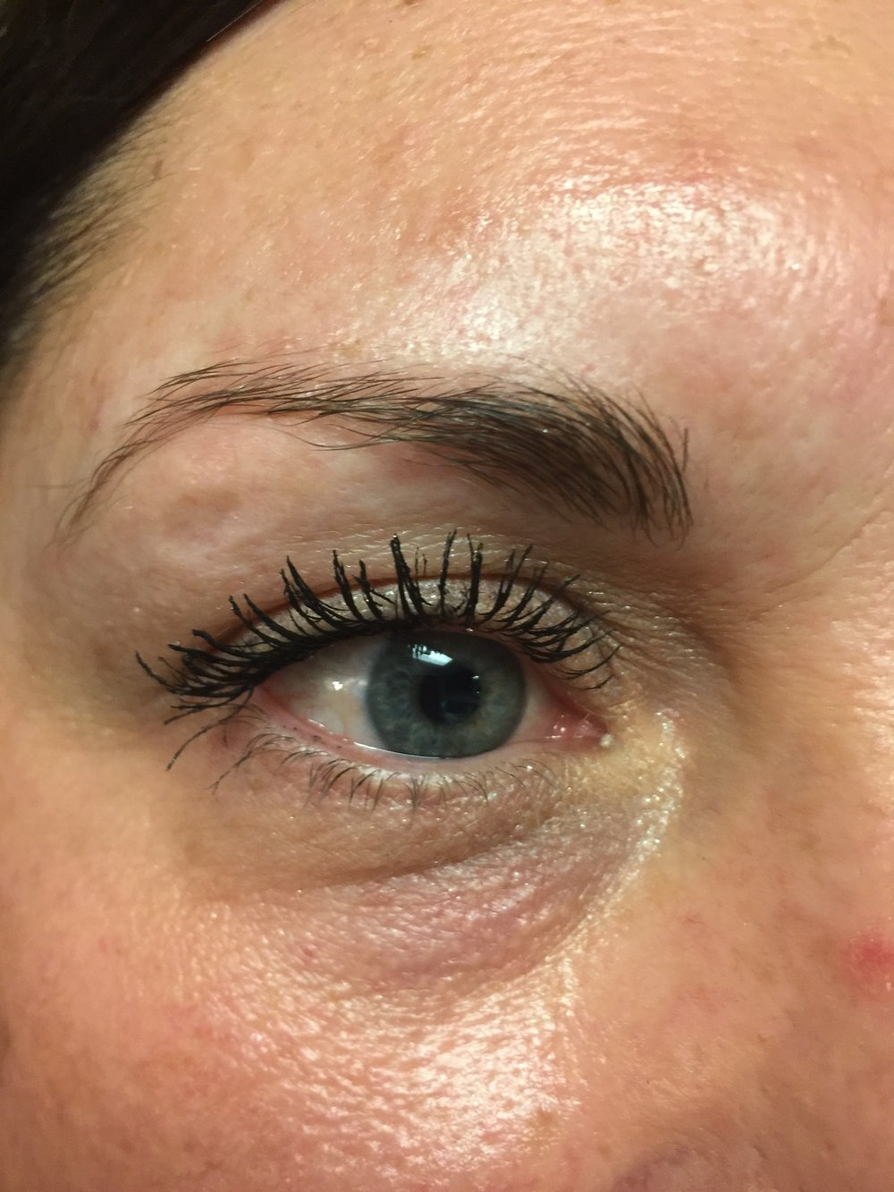 Brow Before Procedure