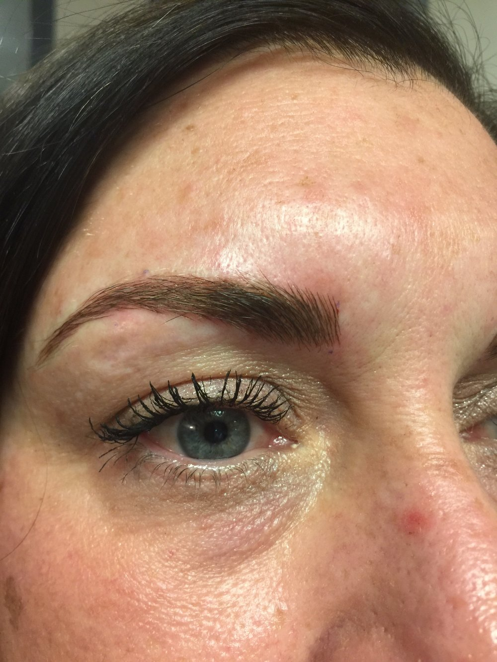 Brow After Procedure