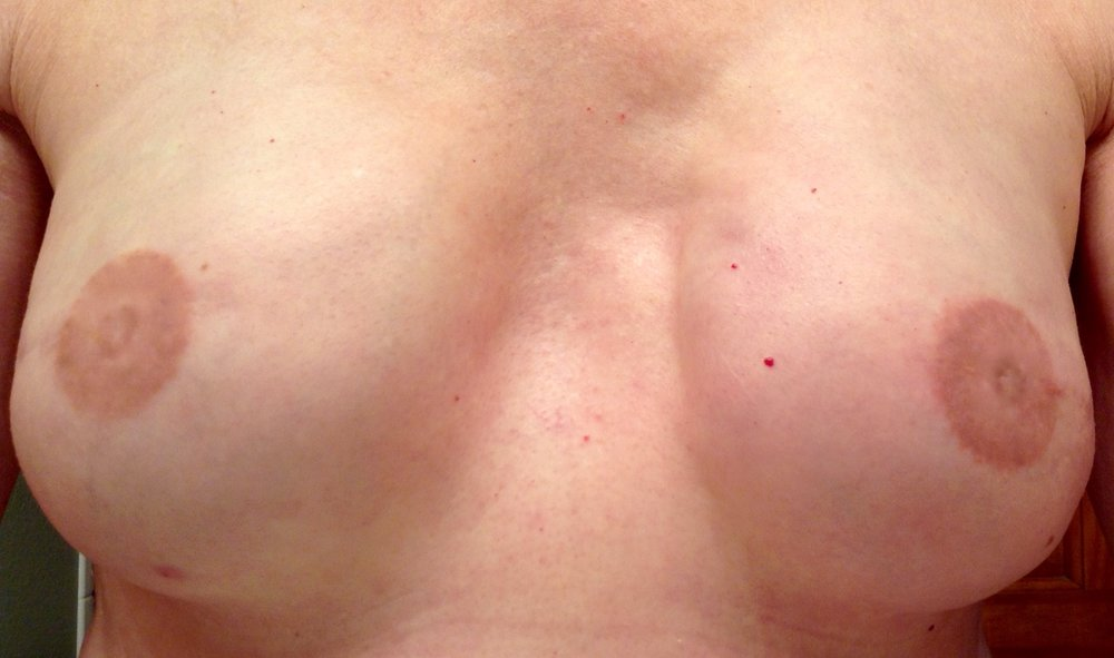 Bi-Lateral Mastectomy with Areola Tattoo