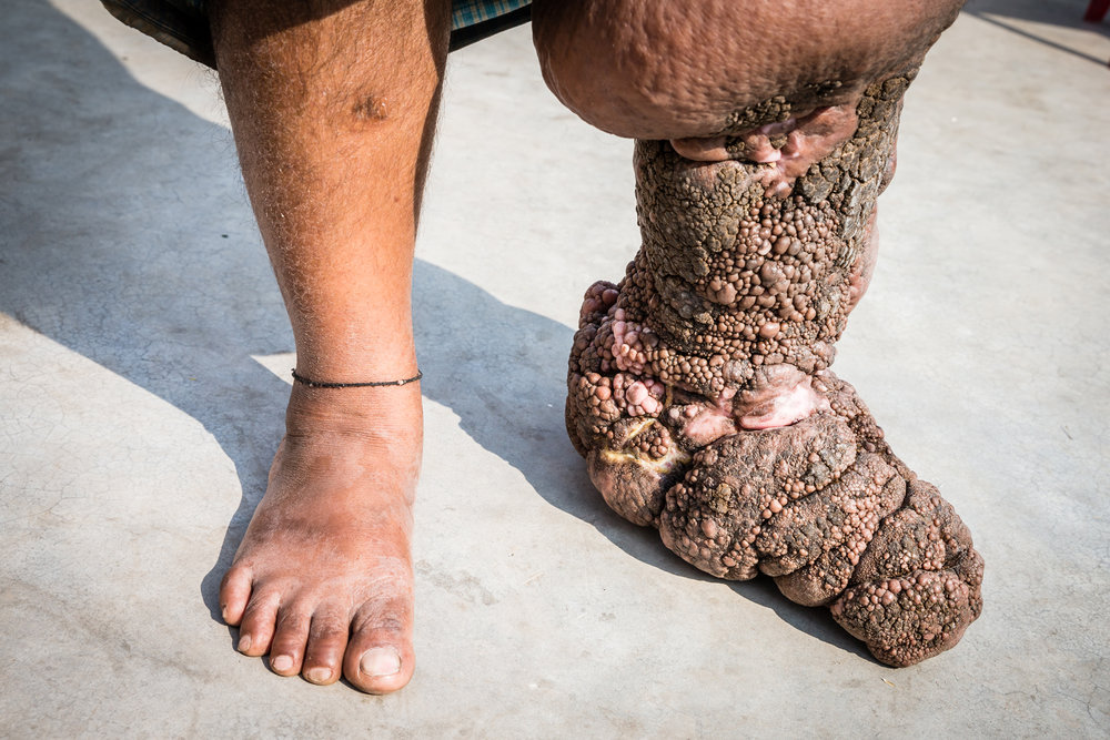 Stage 4 lymphedema caused by lymphatic filariasis. The skin condition has rapidly deteriorated following an ill advised procedure by a poorly qualified plastic surgeon. Photograph: Ecce Opus / © Copyright GSK