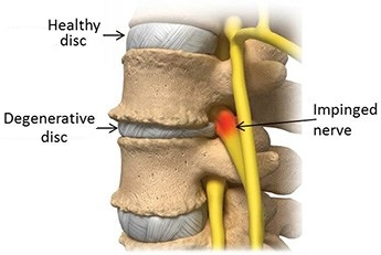 Spine showing degenerative disc disease
