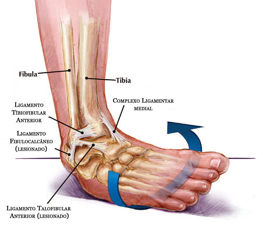 chiropractic patient with ankle sprain, ligament tear and muscle strain