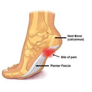 Plantar fasciitis and foot pain