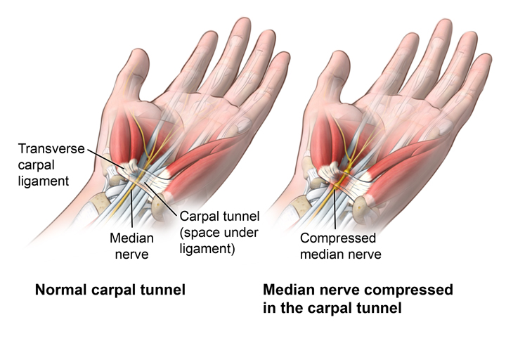 carpal-tunnel.jpg