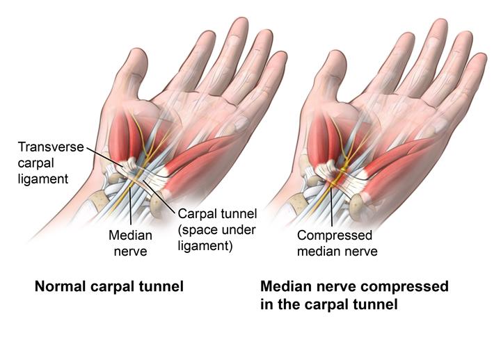 carpal-tunnel.jpg