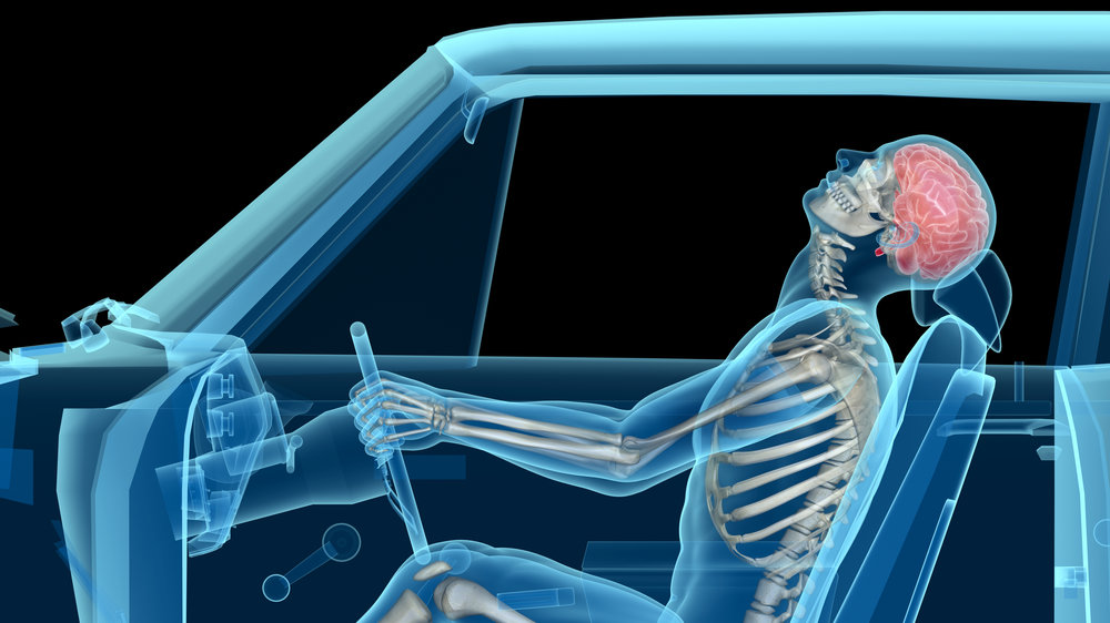 Chiropractic patient in car accident with whiplash