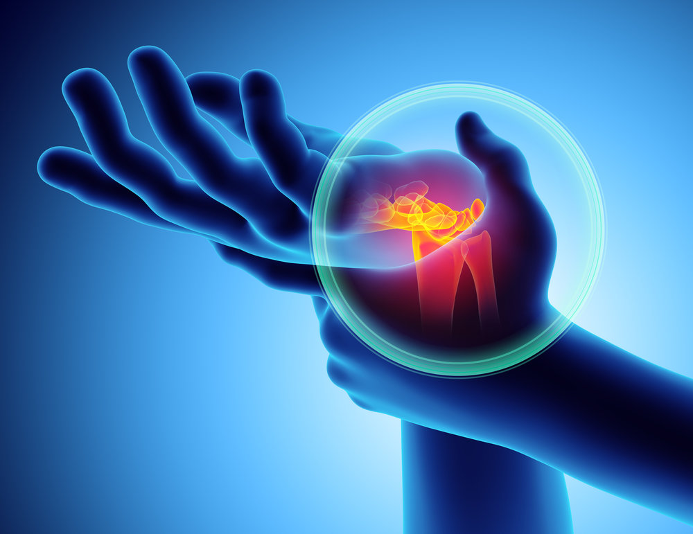 chiropractic treatment for carpal tunnel, wrist, and hand pain