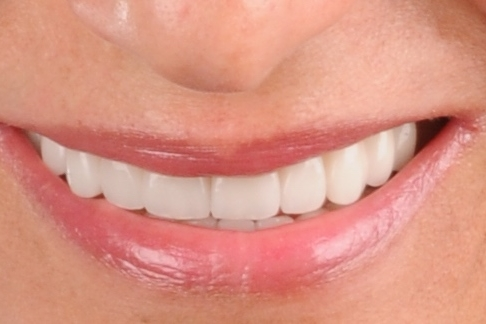 SMILEMAKEOVER -