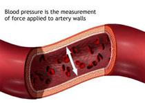 blood_pressure2.jpg