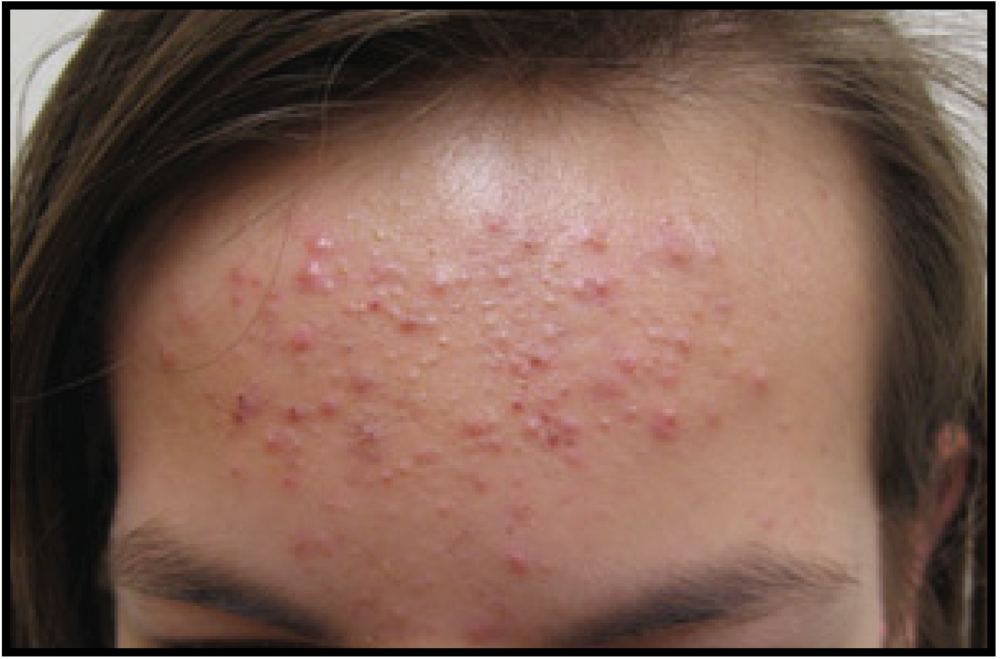 Chronic Acne