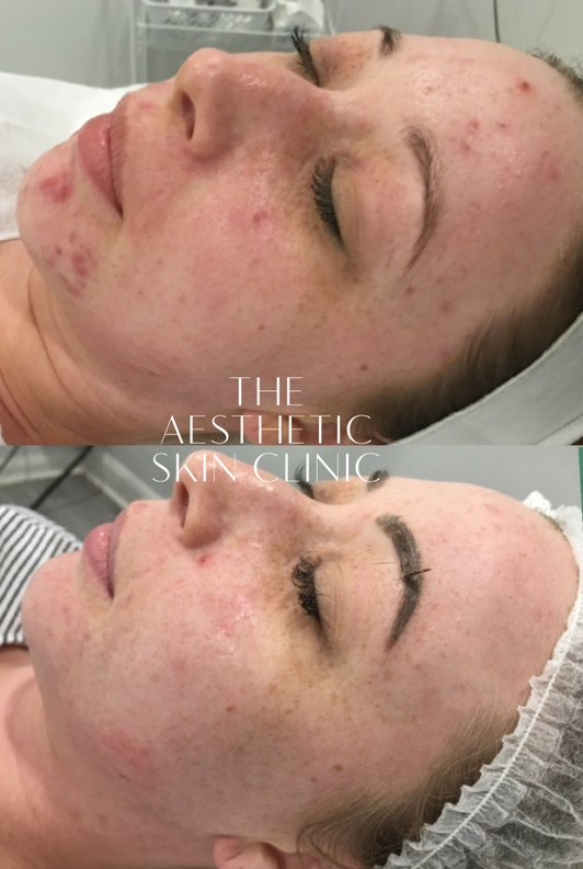 3x DermaSweep MD Treatments with a full Home Care Prescription