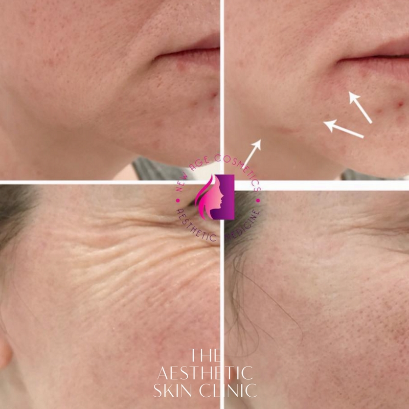 Dermal Filler & Anti Wrinkle Injectables