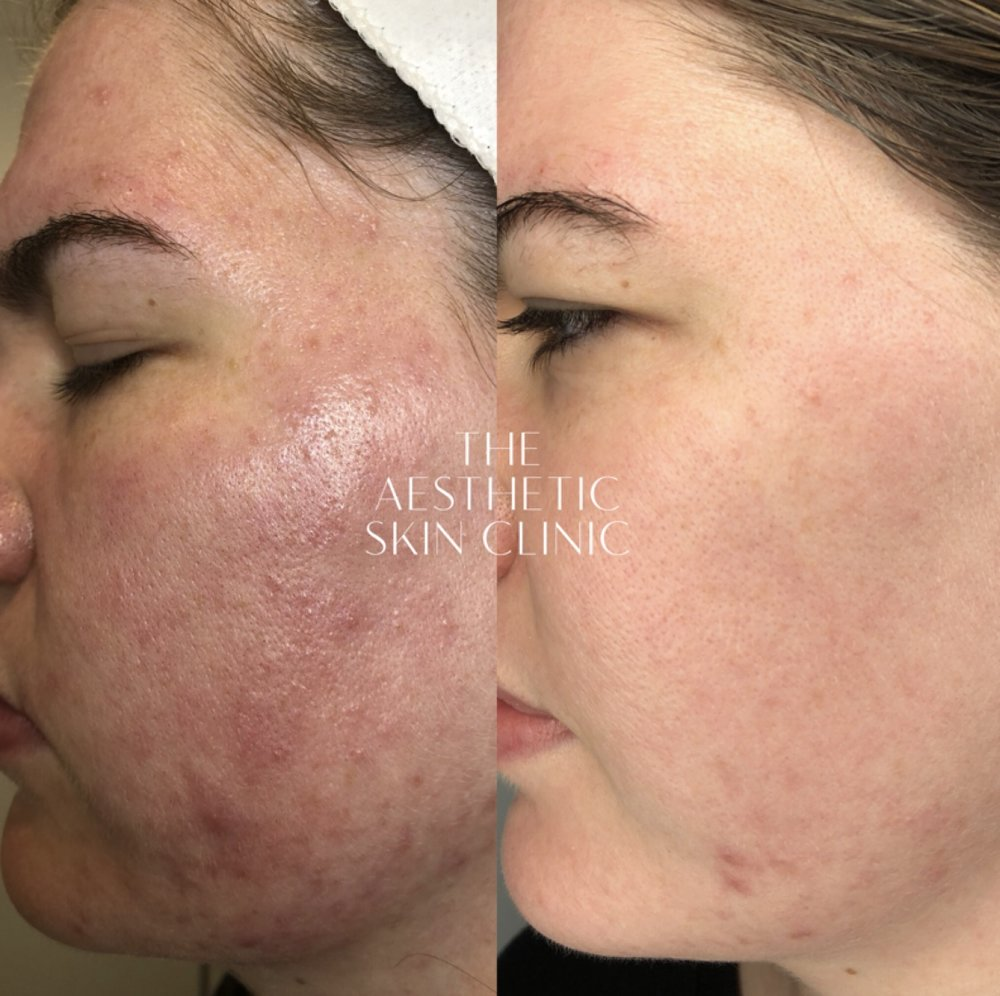 2x DermaSweep MD Treatments with Full Care Home Prescription