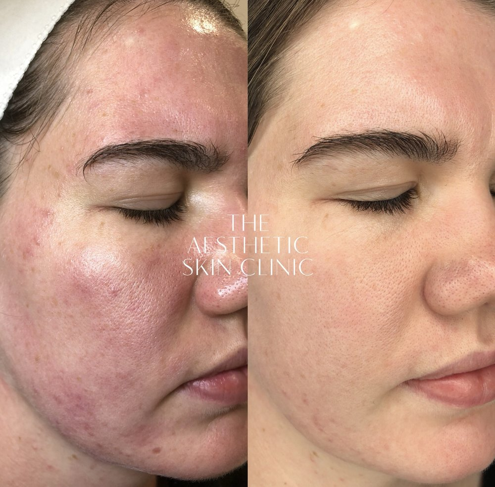 2x DermaSweep MD treatments with a Full Care Home Prescription