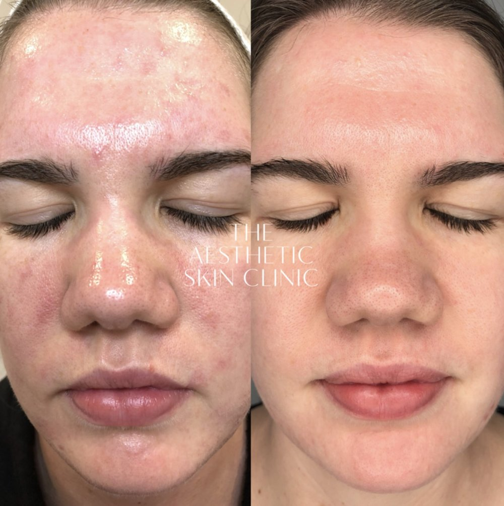 2x DermaSweep MD treatments with Full Home Care Prescription