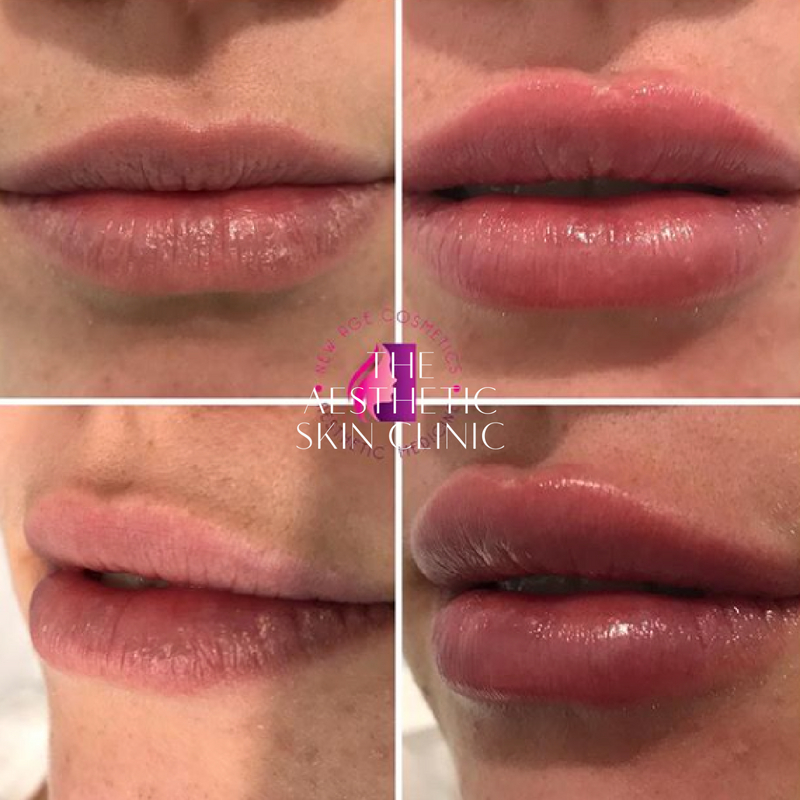 Dermal Filler used for Lip Enhancement