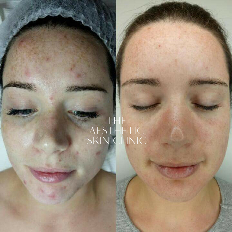 1x Medical Grade Peel with a Full Home Care Prescription