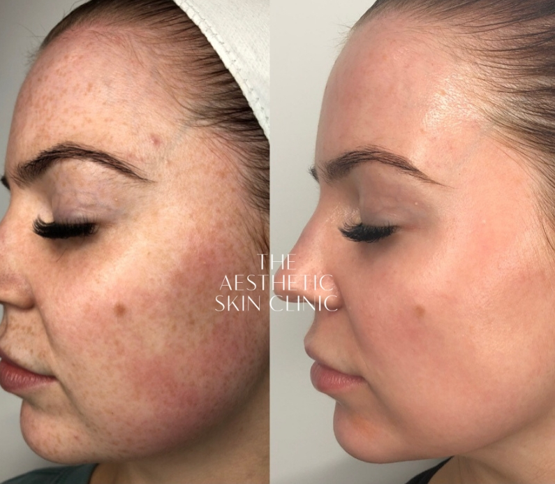 1x Dermamelan Depigmentation Procedure with a Full Home Care Prescription