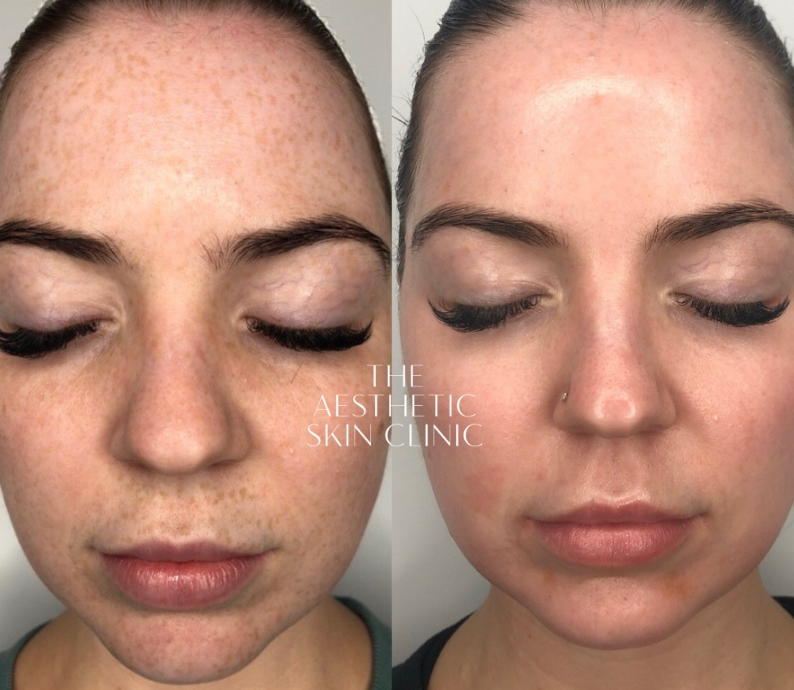 1x Dermamelan Depigmentation Procedure with Full Home Care Prescriptive