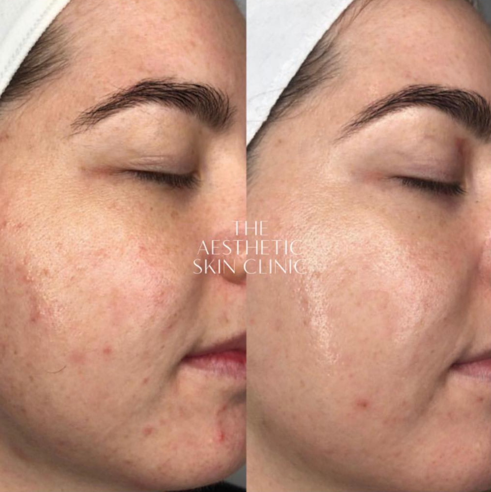 DermaSweep MD facials with full home prescription.