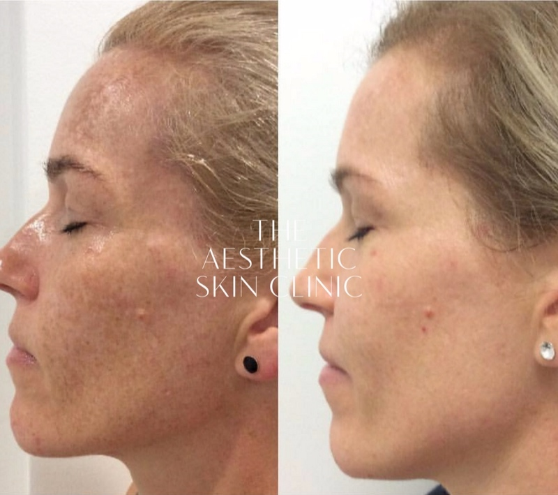 1 x Cosmelan Depigmentation Procedure with a Full Home Prescription