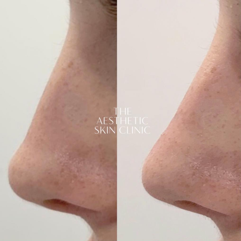 Non-Surgical Rhinoplasty using Dermal Filler