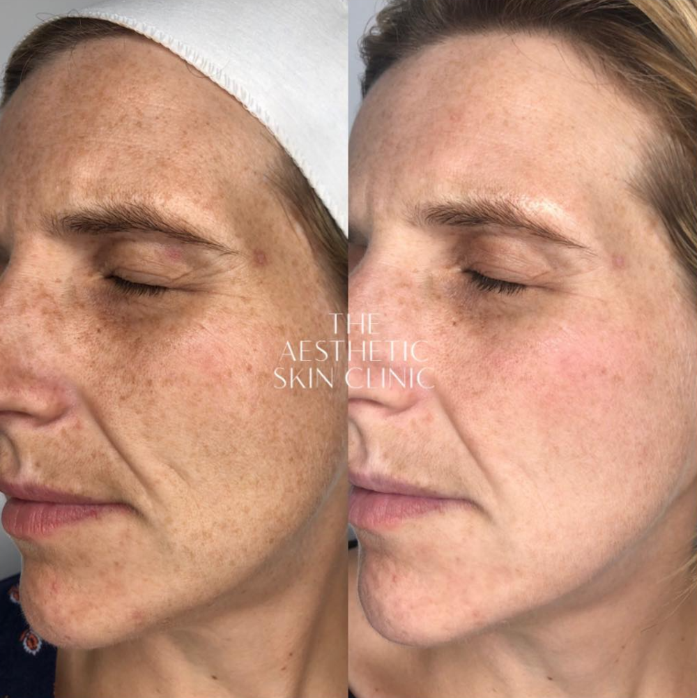 1x LA Glow Super Peel treatment