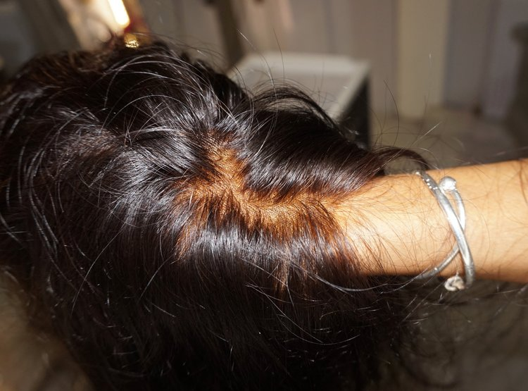 Belle vous hair realistic scalp .jpg