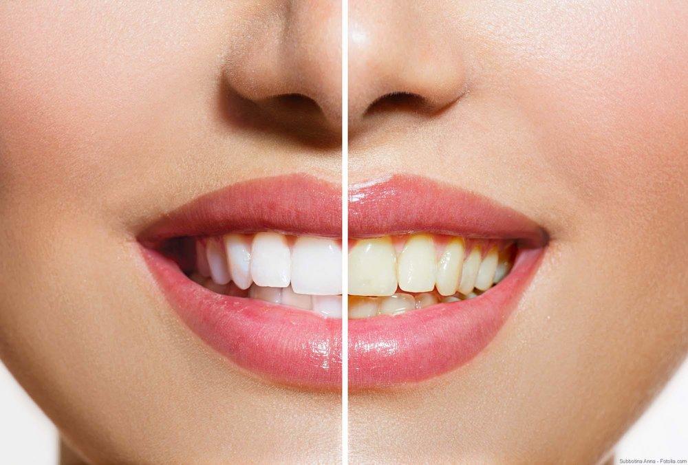 Weiße Zähne -
