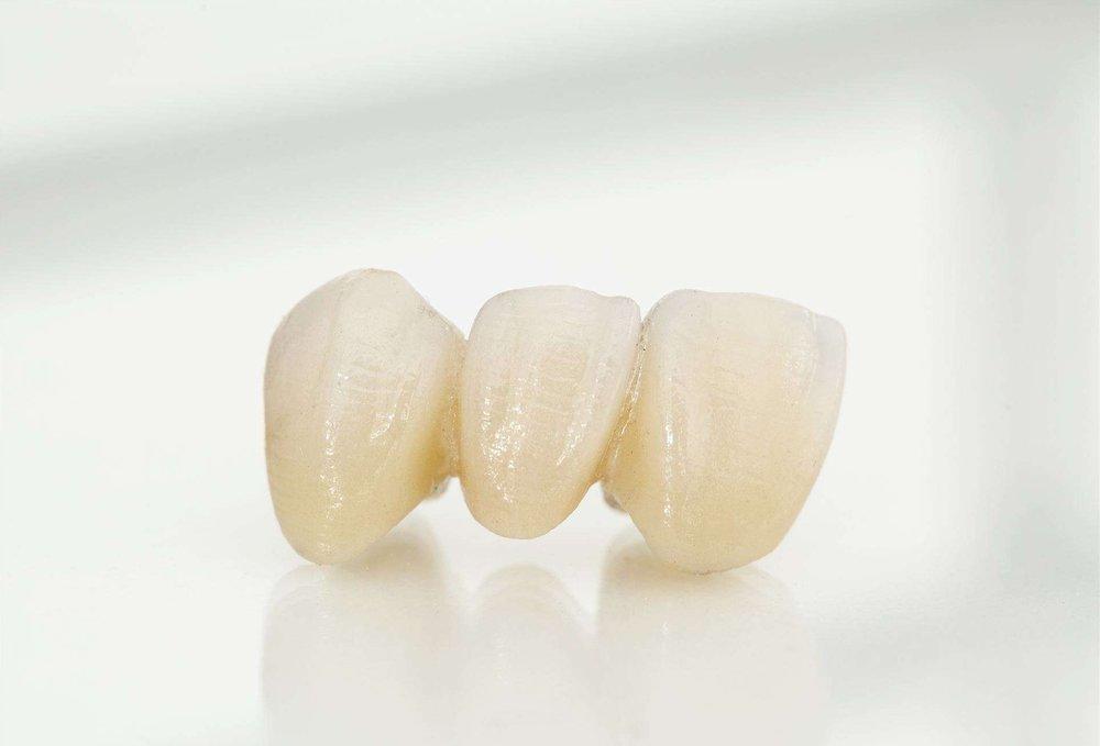 Neue Zähne -