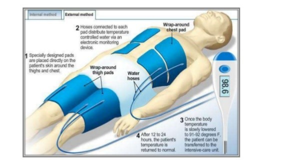 Therapeutic Hypothermia 1.jpg